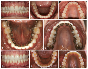 Figure 4: This case showcases an adult patient who had orthodontics as an adolescent, but relapsed. Top images show the patient at the initial visit, with crowding localized to the anteriors mostly. Center images show the patient bonded at midcourse, while the bottom images show the patient after debonding at 12 months.