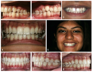 Figure 5: Here, the patient presented with blocked-out maxillary cuspid, left posterior crossbite, and a Class II molar and canine relationship (top images). Images 4 and 5 show a Forsus appliance used in conjunction with Incognito. Note in Image 5 that the Forsus appliance is not visible. The bottom images show the final results.