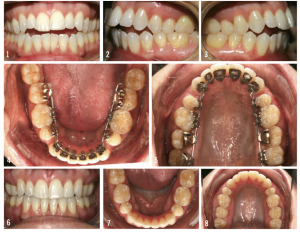 Figure 6: The top images show a patient presenting with hyperdivergent full incompetent profile and anterior dental open bite. The case was bonded prior to referring for extractions. Alignment occurred quickly. With diligent use of elastics, the patient was debonded at 16 months.