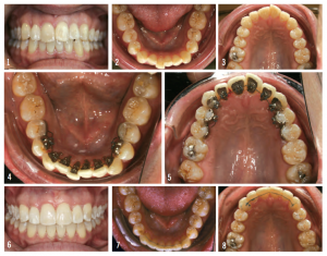 Figure 7: The patient had a history of orthodontic treatment as an adolescent and moderate relapse (top images). She did not want to deal with aligners and refused IPR, thus Incognito Lite was used to treat (center images). The bottom images show the patient at the conclusion of treatment.
