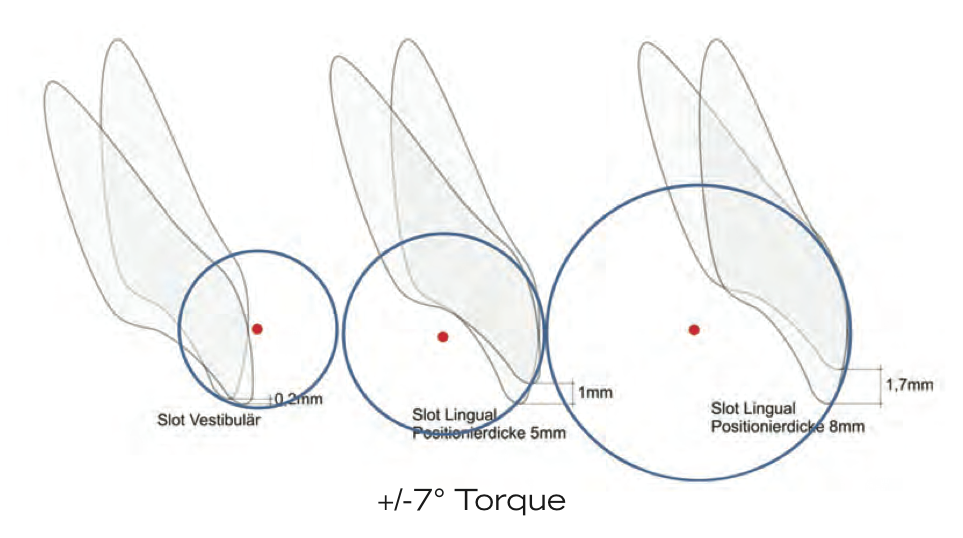 Figure 1: Here is a perfect illustration of how we need to be that much more accurate with lingual. Assuming an average of 14 degrees of torque slop in a noncustomized appliance, the photo on the left shows that if point of force is placed on the labial, it only effects the incisal edge position by .2 mm. However, when placed on the lingual, depending on how close to the lingual surface we can get, the discrepancy can be from 1 mm (center) to almost 2 mm (right).