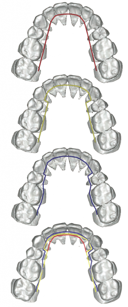 Figure 3: Custom archwires bent toward the individual patient's anatomy will allow for brackets and slots to be as close to the surface of the tooth as possible.