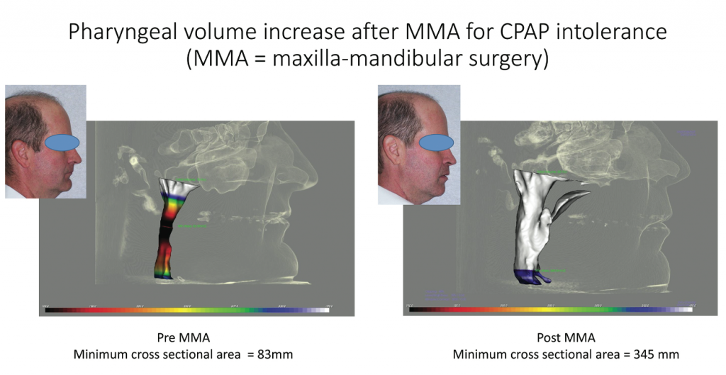 Figure 6: The patient underwent maxillamandibular surgery due to CPAP intolerance. Pre-MMA, the minimum cross sectional area equaled 83 mm (left). Post-MMA, the minimum cross sectional area was 345 mm, increasing the pharyngeal volume (right). Photo courtesy of Juan-Carlos Quintero, DMD, MS