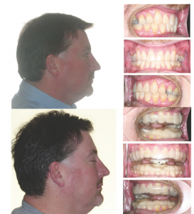 Figure 7: Before beginning treatment using an FDA-cleared sleep oral appliance, the patient had an AHI = 45. Post-treatment, the patient was retested and his sleep apnea score had dropped to -1. Photo courtesy of Lou Chmura, DDS, MS