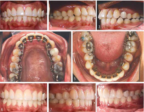 Figure 3: Images 2 and 3 show the initial Class II malocclusion and the flared incisors. Over the course of 14 months, lingual braces were used to move the teeth into a more upright position and slide the bite to a Class I.