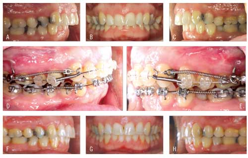 Figure 2. (A-C) Patient presents with an advanced maxilla. (D-E) Shown at 6 months, distalization and space developing around the premolars and canines. (F-H) Patient completes treatment at 18 months.