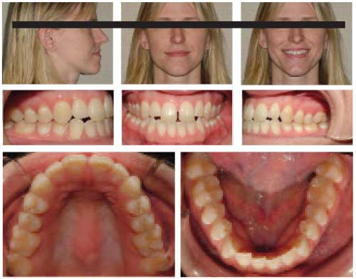 Figure 1: Patient presents with a skeletal Class III malocclusion with an anterior crossbite and anterior open bite.