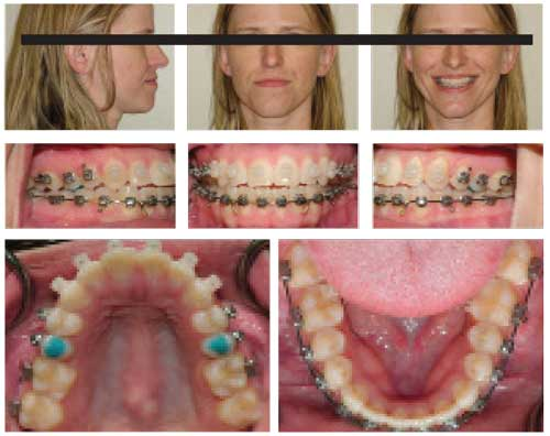 Figure 2: Patient's crowding began to unravel and teeth began to align quickly; however, her occlusion was slightly more open.