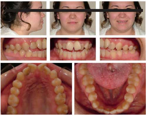 Figure 4: Patient presents with Class III skeletal and dental relationships, apertognathia, anterior crossbite, moderate upper to lower arch length  discrepancies, and a large tongue with anterior tongue posture.