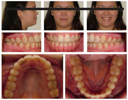 Figure 5: After 17 months of treatment, a Class I occlusion was achieved with improved  smile esthetics and increased tooth display.