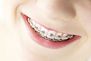 http://www.dreamstime.com/royalty-free-stock-images-smile-braces-image24493259
