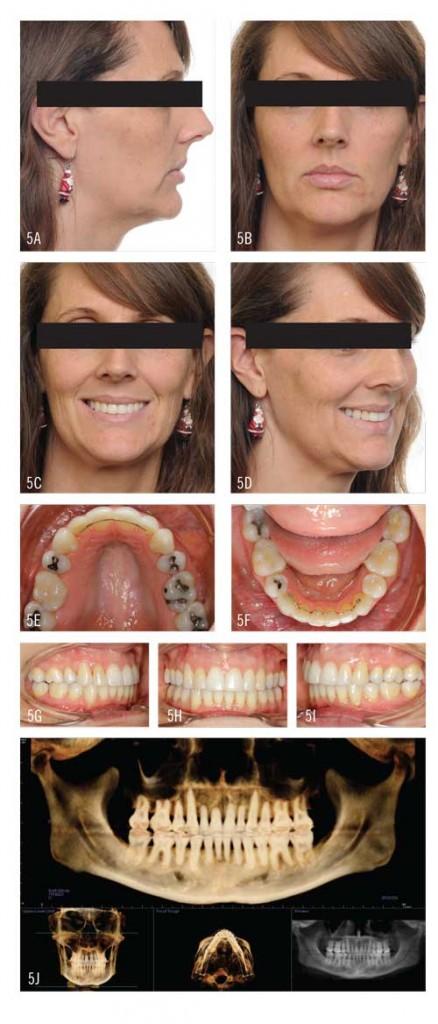 Figure 5A - 5J: Debonding. Total treatment time: 26 months.