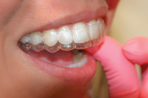 Dental retainers after braces are removed