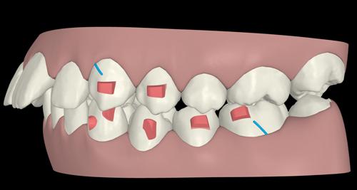 A graphic representation of the basic Class II setup using Invisalign Teen and elastics.