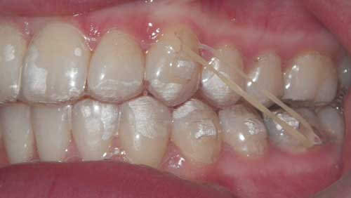 The typical Class II setup on a teen patient, shown here with an optional incisally beveled, horizontal rectangular attachment on the upper left canine. The attachment was placed for aligner retention.