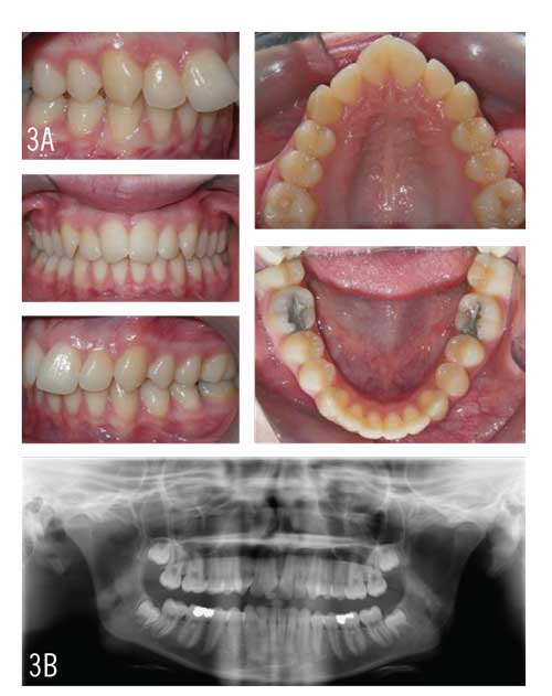Figures 3A and 3B: A 16-year-old female patient with a Class II division 1 malocclusion with maxillary and mandibular crowding. Treatment included the insertion of attachments, aligners, and the use of light Class II elastics.