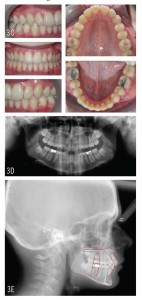 At treatment end, the patient has a bilateral Class I occlusion with normal overbite and overjet. Superimposition shows the correction was the result of mesial movement of the lower dentition and palatal tipping of the upper incisors.