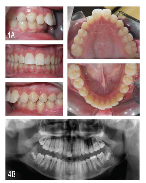 Figures 4A and 4B: A 13-year-old male patient exhibits a large Class II division 1 malocclusion, larger overjet, and deep overbite. Mild upper and lower crowding is present.