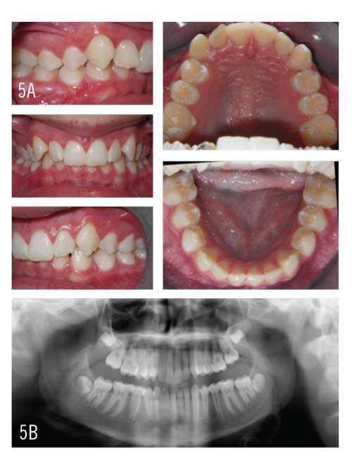 Figures 5A and 5B: A 14-year-old male patient has a significant Class II division 1 malocclusion complicated by a severely deep overbite and retro-inclination of the upper incisors.
