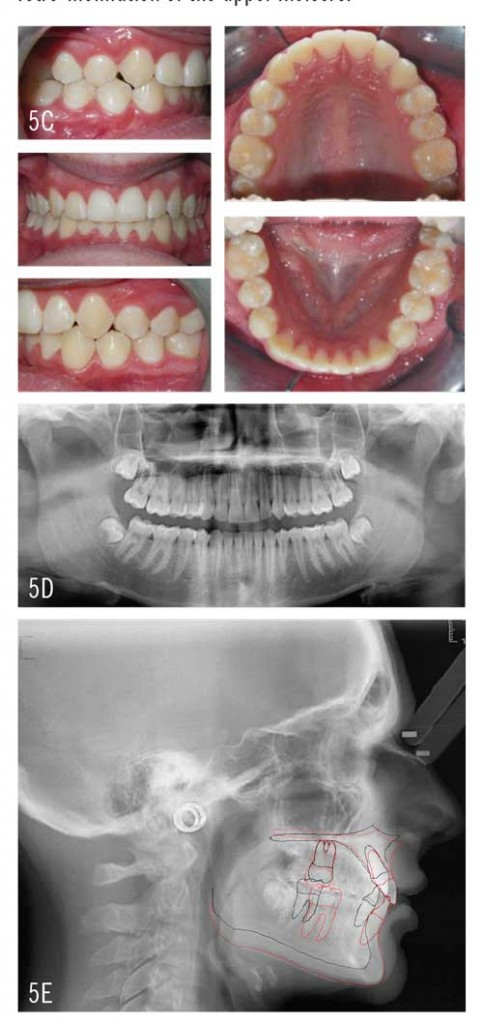 Figures 5C-5E: Treatment included placement of attachments, and insertion of aligners and 1.8-ounce Class II elastics. Final photographs here reveal correction to Class I on both sides with improvement in the deep overbite.