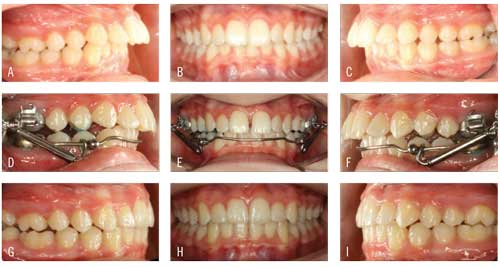 Figure 4. (A-C) Patient presents with Class II malocclusion. (D-F) Esprit springs added to the Xbow at 6 weeks. (G-I) Patient following treatment with Xbow and Esprit for 5 months, Avex MX for 9 months, and AcceleDent.