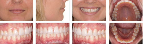 Figure 1: A 32-year-old female patient presents with a Class I malocclusion. Her main concerns were lower anterior crowding and the upper anterior space between her front teeth. The patient had previously worn traditional braces and did not want to do so again.