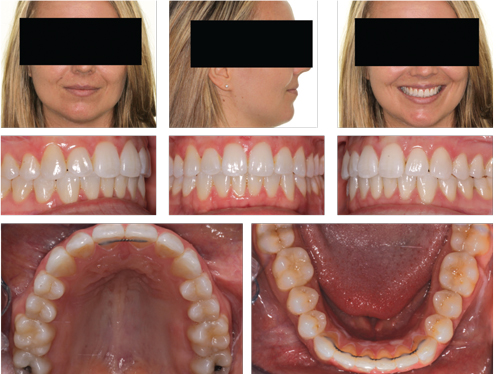 Figure 4: A fixed lingual retainer was placed on #8 and #9 to ensure no relapse of the diastema would occur.