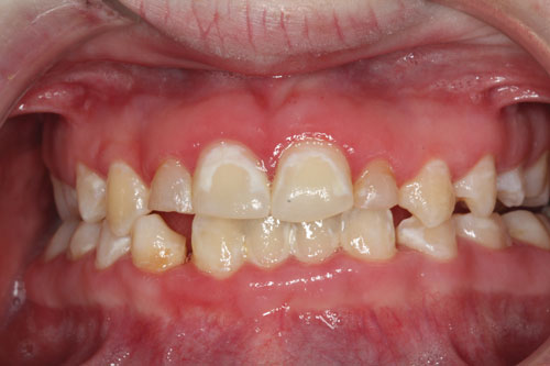 Intraoral anterior photograph of a Down syndrome patient showing the adverse effects (decalcification) of poor oral hygiene aggravated further by chronic mouth breathing.